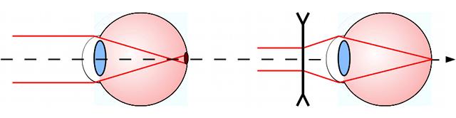 Les défauts de vision fc86ae6025cf